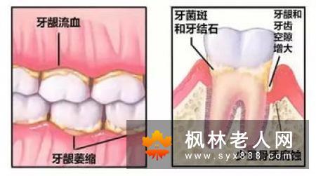 牙周炎都有哪些治疗误区