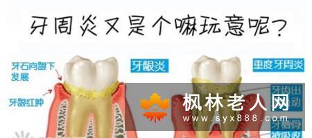 成年人的牙周炎表现是怎样的?